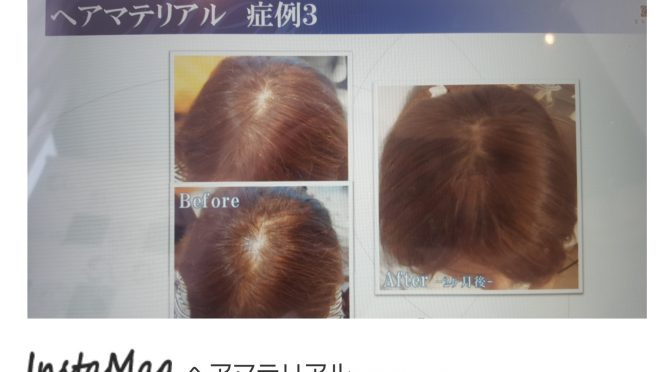 ハーブピーリングと一緒に導入する成長因子(ダーマテリアル)で発毛もできるという驚きの件について!