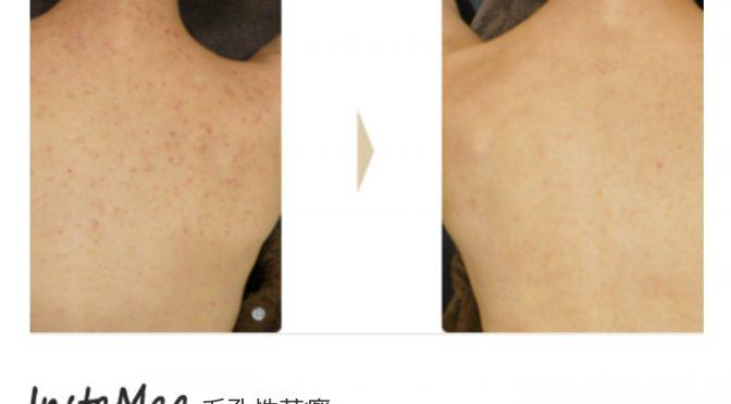 毛孔性苔癬(もうこうせいたいせん)にハーブピーリングを使用する場合