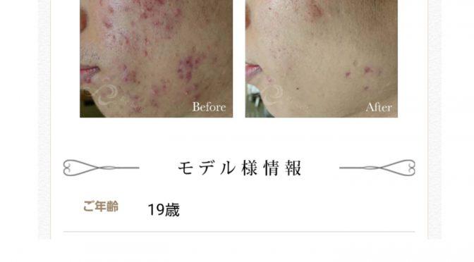 リベル名古屋!ハーブピーリング治療!症例写真発表会!